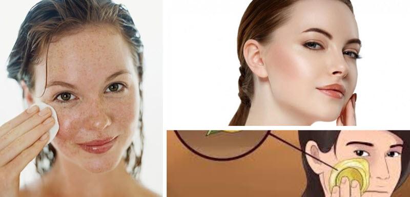 كيفية التخلص من البقع الداكنة في الوجه والبشرة بطريقة طبيعية متوفرة في منزلك